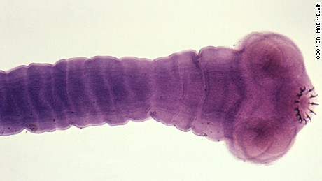 A  cysticercus of Taenia solium. Taeniasis, the intestinal infection transmitted by the worm is a mild condition, but it plays a crucial role in a patient developing cysticercosis, a serious disease caused by tape worm larvae.