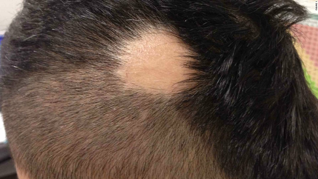 Snap it post it diagnose it the instagram of medicine an image uploaded of a patient with alopecia areata an autoimmune skin disease resulting in urmus Choice Image