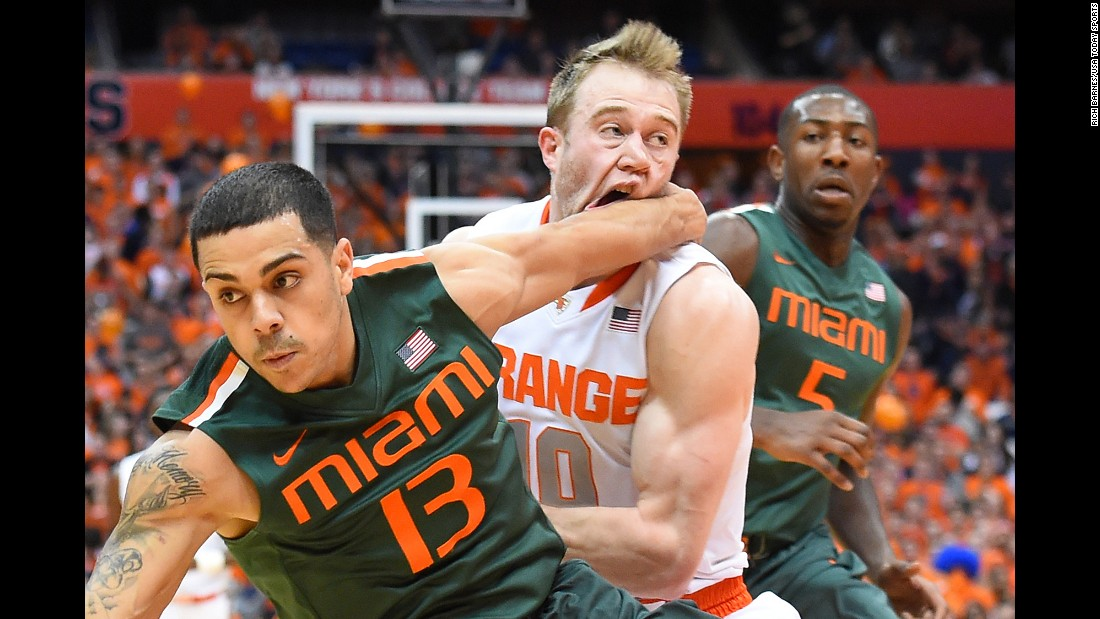 Syracuse guard Trevor Cooney is hit in the face by Miami guard Angel Rodriguez while he drives to the basket Saturday, January 24, in Syracuse, New York.