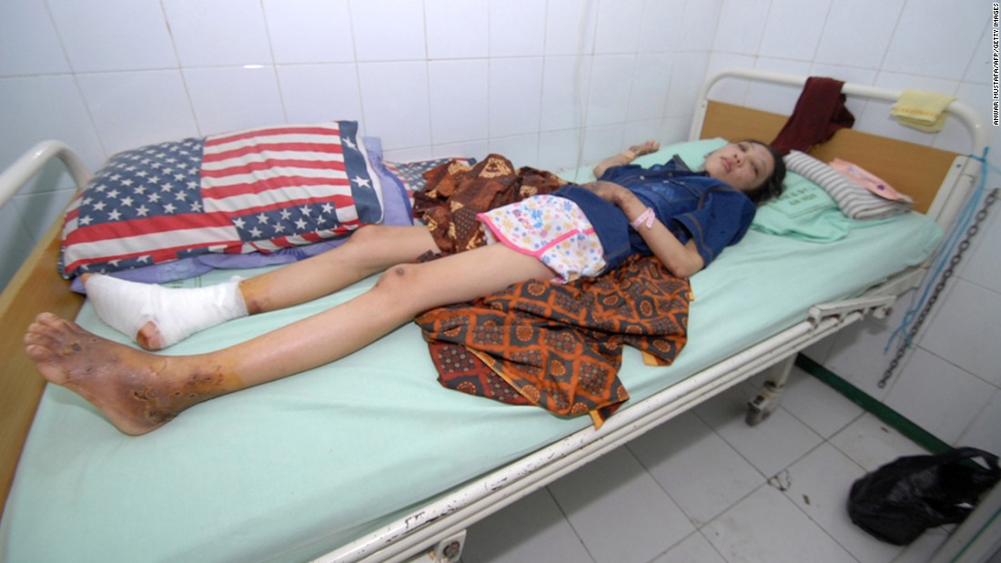 Erwiana rests at a hospital in Sragen on January 15, 2014.