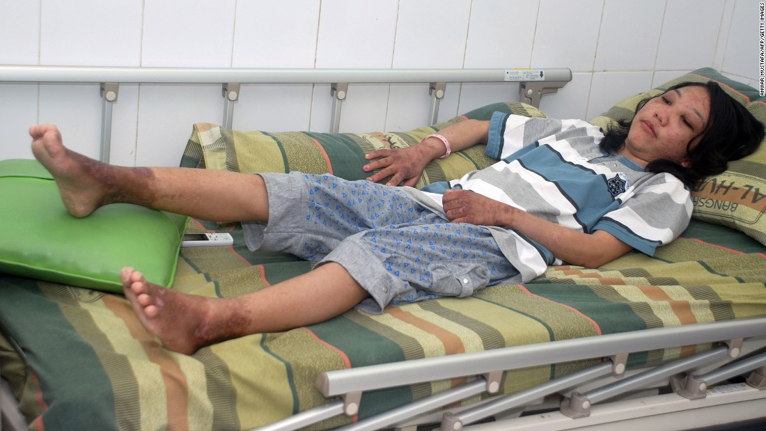Erwiana lies on a hospital bed before leaving on February 5, 2014.