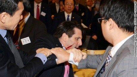 U.S. ambassador leaves hospital after knife attack