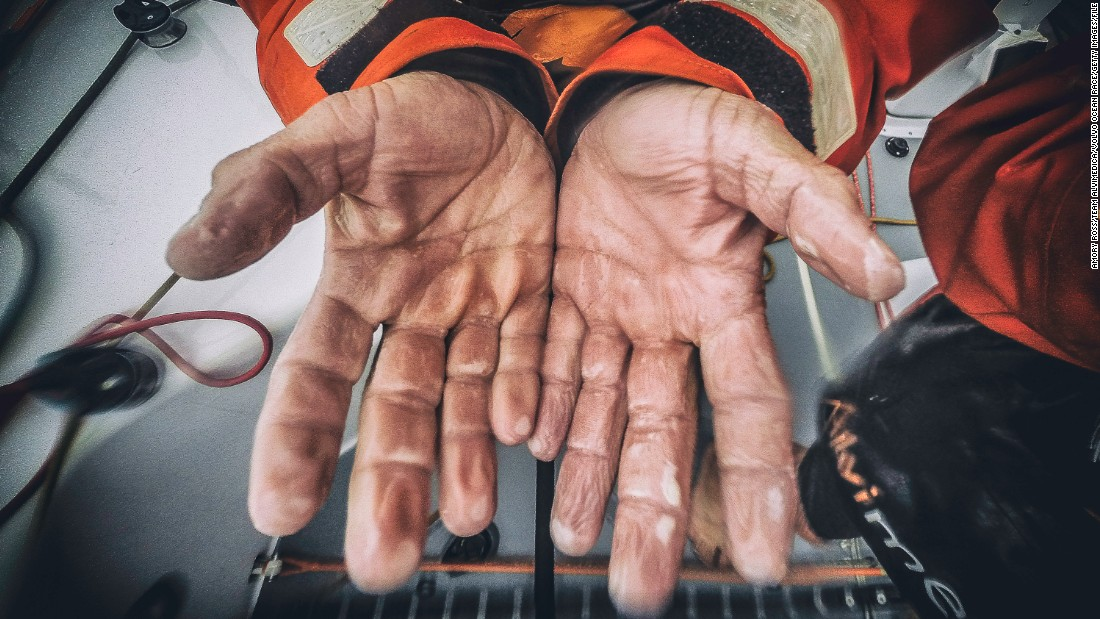 Sailor Ryan Houston shows off his prune-like hands after a morning of heavy rain.