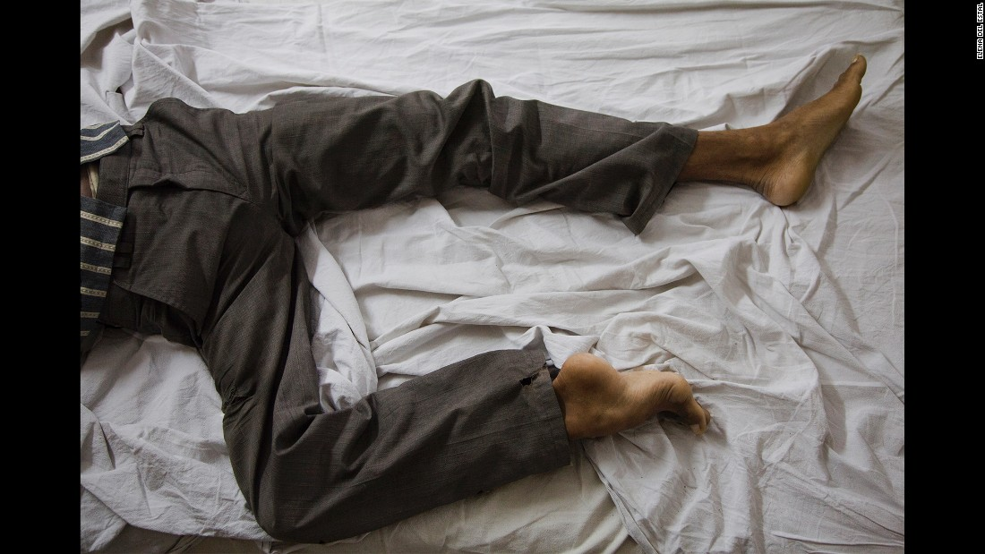 Dharmender lies on a bed in St. Stephen's Hospital a few days before his surgery. Even though his village was poor, his family took good care of him, del Estal said.