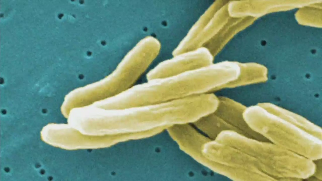 27 cases of tuberculosis at Kansas high school