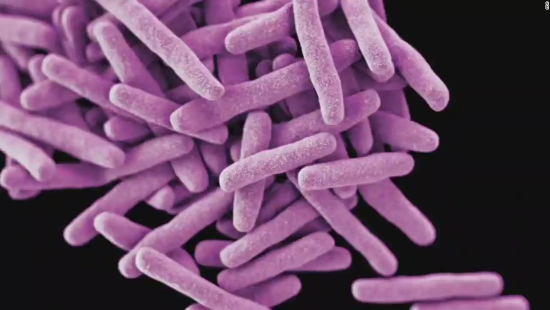 350 infants may have been exposed to tuberculosis at California hospital