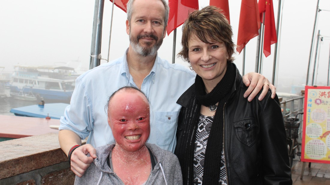 Bullied but not beaten: Mui Thomas uses rare skin condition to inspire
