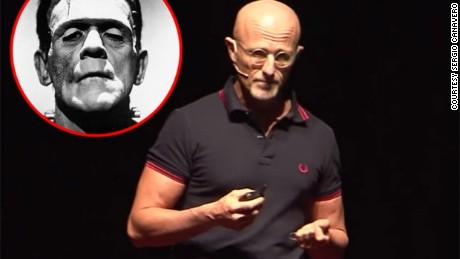 Does the human head transplant coming soon?