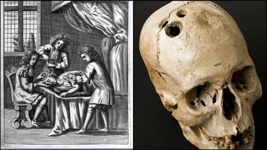 Dating back before ancient Roman and Greek times, according to Totelin, holes were drilled into human skulls to relieve a range of ailments from migraines to head injuries. <br /><br />The practice -- known as trepanation -- is considered by experts to be the oldest form of neurosurgery.  Its original use was to relieve pressure, reduce swelling and also enhance overall bloodflow in the brain and improve well-being.<br /><br />The premise behind the practice is still used by neurosurgeons today to reduce swelling and pressure in the brain before, or after, surgery.<br />