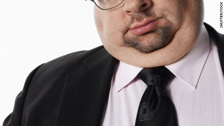 The Food and Drug Administration has approved a drug that can eliminate neck fat without surgery.