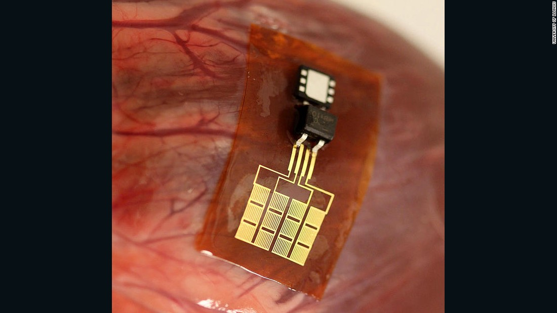 Flexible electronics can even be placed inside the body to learn more about organ health. They are being tested on rodents.
