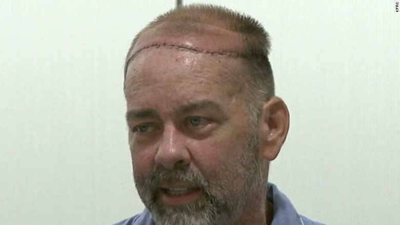 Texas man receives world's first skull, scalp transplant