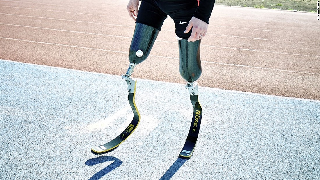 """Prosthetic knee joints are only really good for walking in a straight line on level terrain,"" says Henson. ""Things like riding a bike or walking up and down stairs are really where you start to notice."""