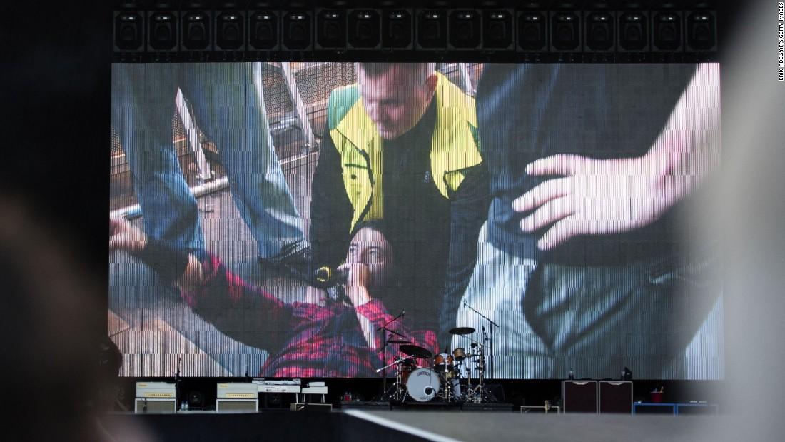 "Foo Fighters' Dave Grohl is pictured on a big screen talking into a microphone after falling from the stage and breaking his leg during the band's concert at Nya Ullevi in Gothenburg, Sweden, Friday, June 12. Grohl fell off the stage while performing ""Monkey Wrench,"" the band's second song of the evening. Grohl left the stage and later finished the show from a chair."