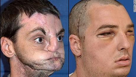 Facial deformaties golden