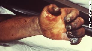 From the plague to polio ... 10 diseases you (wrongly) thought were gone