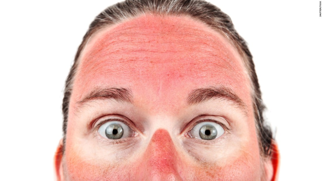In the most severe cases of sunburn, people can develop blisters and need to be treated like burn victims.