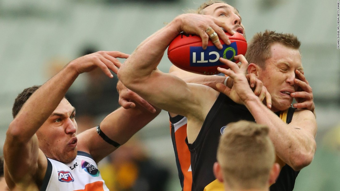 Jack Riewoldt of the Richmond Tigers is poked in the face Saturday, July 4, during an Australian Football League match against the Greater Western Sydney Giants.