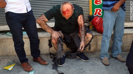 Dozens dead after bomb attack in Turkey