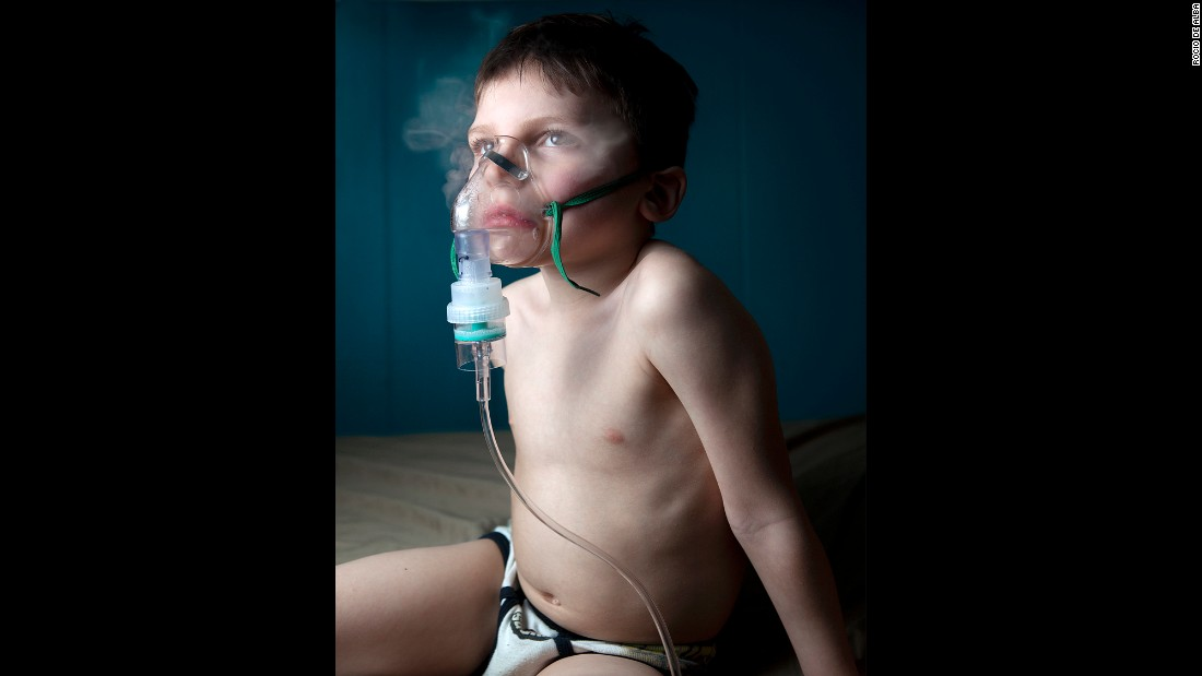 Thomas uses his nebulizer to treat a dry cough, which he develops seasonally, De Alba said.