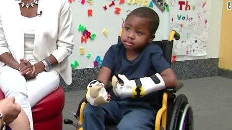 first bilateral child hand transplant kyw dnt_00000115.jpg