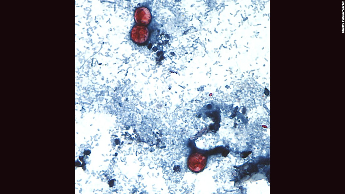 <strong>Cyclosporiasis:</strong> An intestinal infection caused by the cyclospora cayetanensis parasite, seen here on a stool sample through a microscope on a slide. Cyclospora infect the small intestine and most commonly cause watery diarrhea; other symptoms include abdominal cramping, nausea and weight loss.