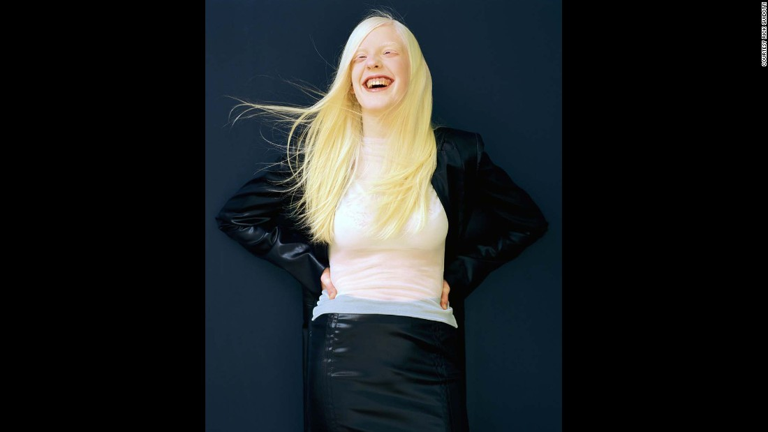 "Meeting Christine changed Guidotti's life. ""The first person I photographed with albinism, featured in Life magazine."" After meeting Christine, Guidotti sought to bring about change with his photography."
