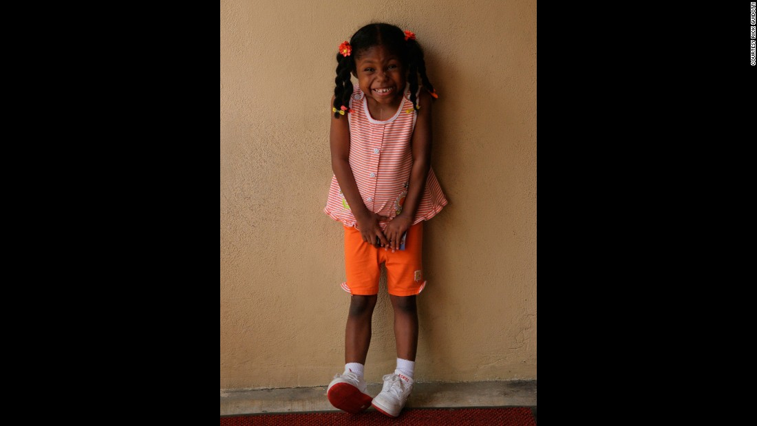 Jayda, living with a deletion missing from her 22nd pair of chromosomes, loves to sing and dance.
