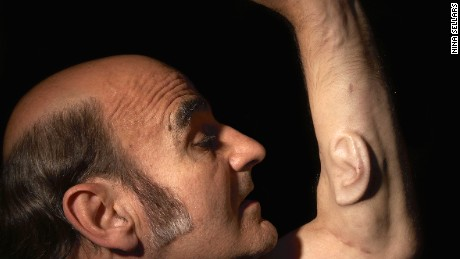 Australian performance artist Stelarc is growing a third ear on his arm