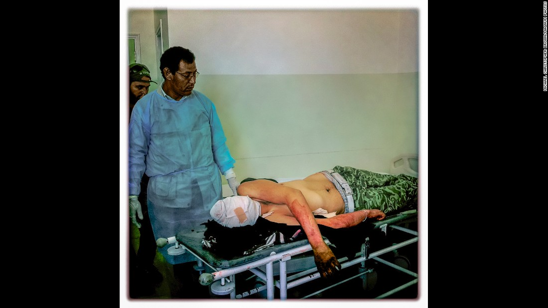 A dead fighter, who was also a fixer for foreign journalists, lies on a gurney in Misrata, Libya, in April 2011. That morning, Brown said, he was originally supposed to accompany the fighter to the front lines.