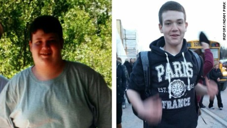 How one teen began his 165-pound weight loss journey
