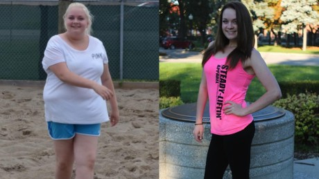 Mackenzie Walker lost 100 pounds before she turned 15 years old.