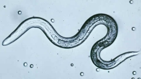 Parasites worm their way into back-to-school season
