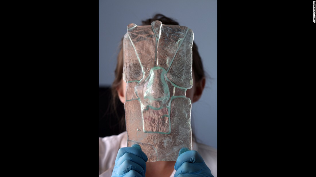 Researcher Claire Crowley holds up a glass mold of a patient's nose, which is used to create a new nose.