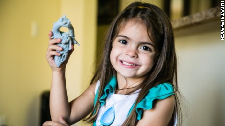 How a 3-D-printer changed a 4-year-old's heart and life