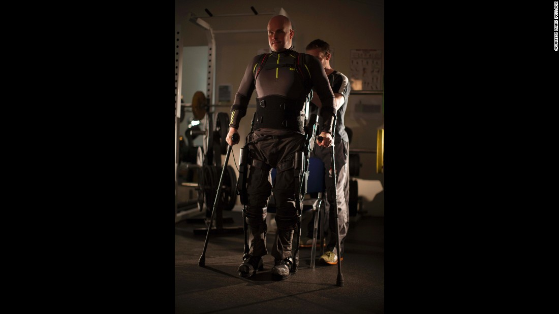 Pollock has taken thousands of steps with robotic legs under the guidance of doctors at UCLA.