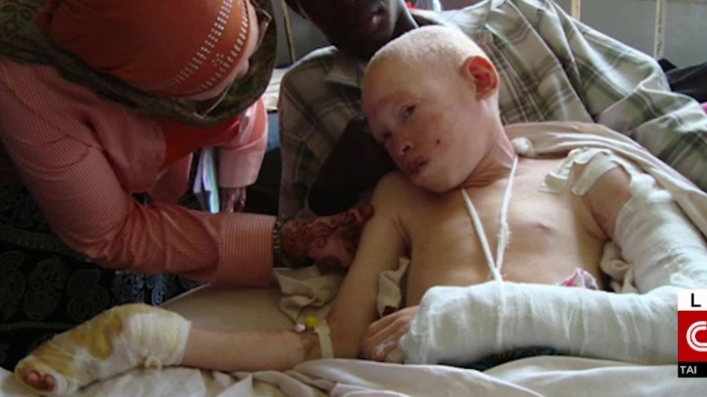 Malawi S Albinos At Risk Of Total Extinction U N Warns