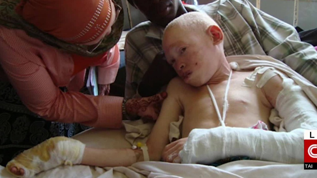 Albino teen attacked for her body parts gets reason to smile again in the U.S.