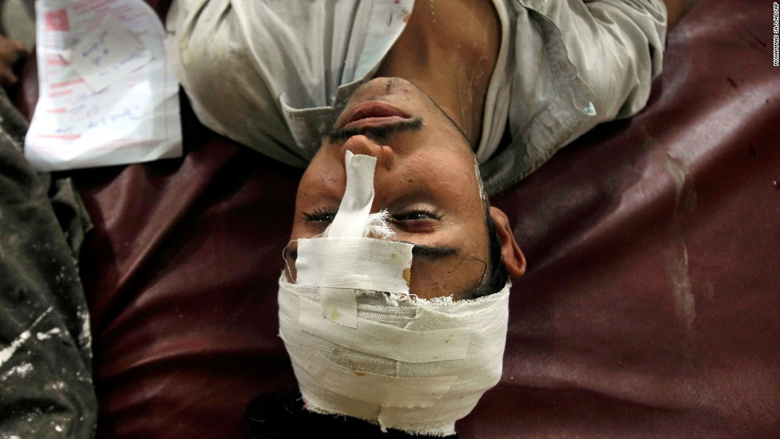 A man injured in the earthquake lies on a bed at a hospital in Peshawar.