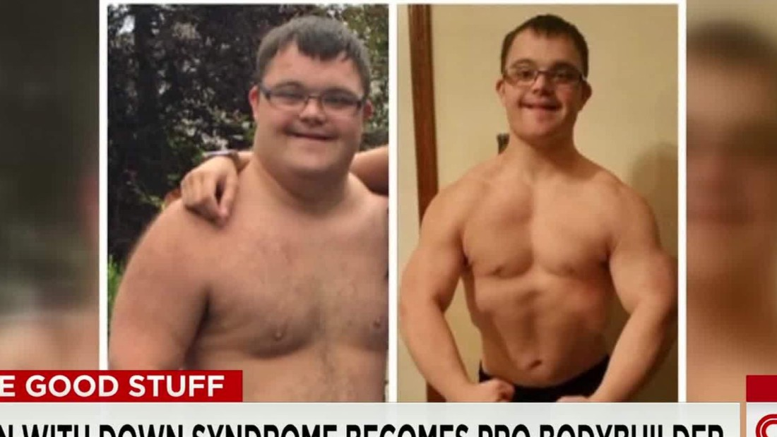 Man with Down syndrome becomes pro bodybuilder
