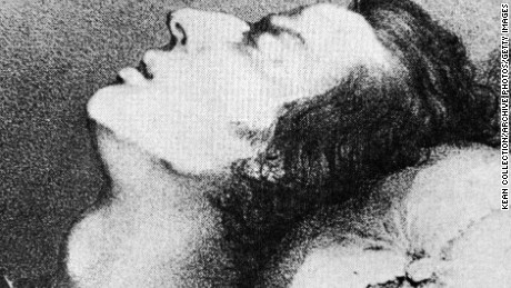 A drawing of composer Frederic Chopin dying from tuberculosis, 1849.