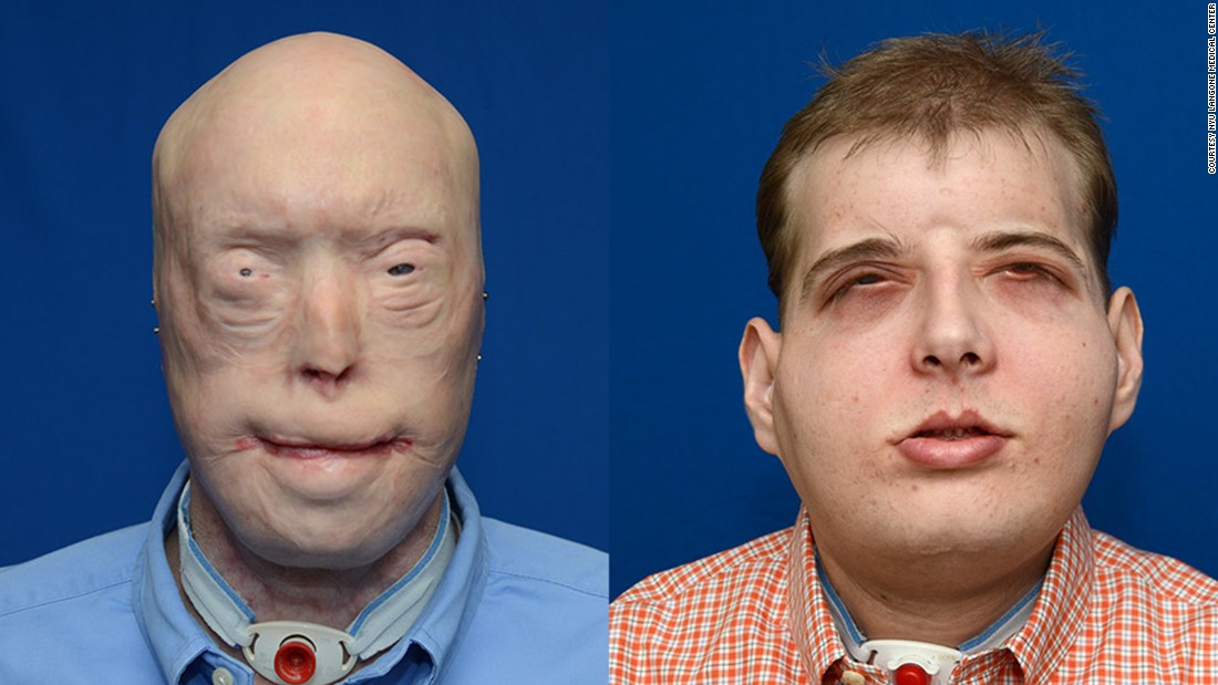 "Patrick Hardison, 41, had <a href=""http://www.cnn.com/2015/11/15/health/face-transplant-firefighter/index.html"">face transplant surgery</a> in August 2015. The surgery was performed by a plastic surgeon from New York University Langone Medical Center. Hardison, a volunteer firefighter, was injured 15 years ago."