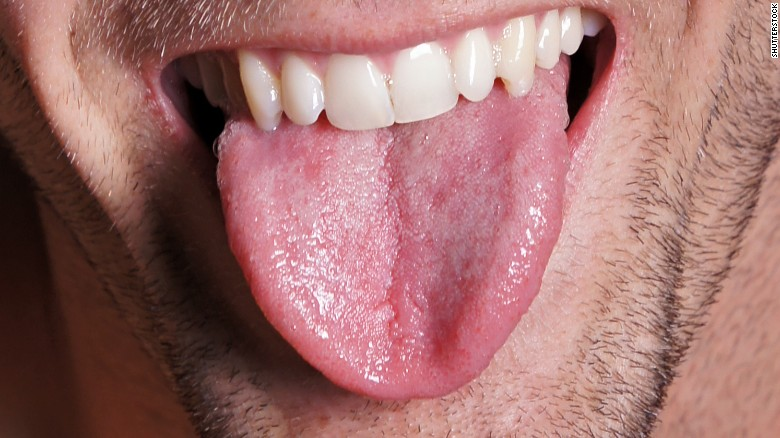Woman suffers from 'black hairy tongue' after auto accident