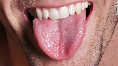 The bumps and ridges on your tongue make it unique from any other.