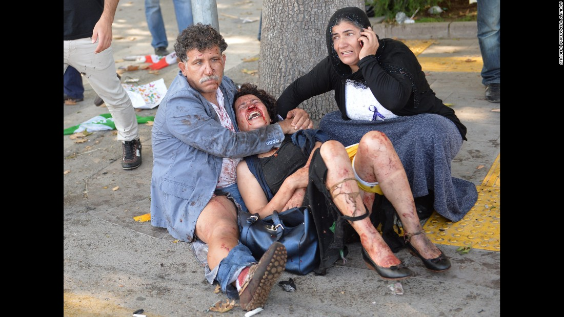 "<strong>October 10: </strong>People try to help an injured woman after multiple explosions at a peace rally in Ankara, Turkey. <a href=""http://www.cnn.com/2015/10/14/middleeast/turkey-ankara-blasts-investigation/"" target=""_blank"">There were two explosions</a> during the rally, which called for an end to the renewed conflict between the Kurdistan Workers' Party and the Turkish government. At least 99 people were killed, officials said, and more than 240 were injured."