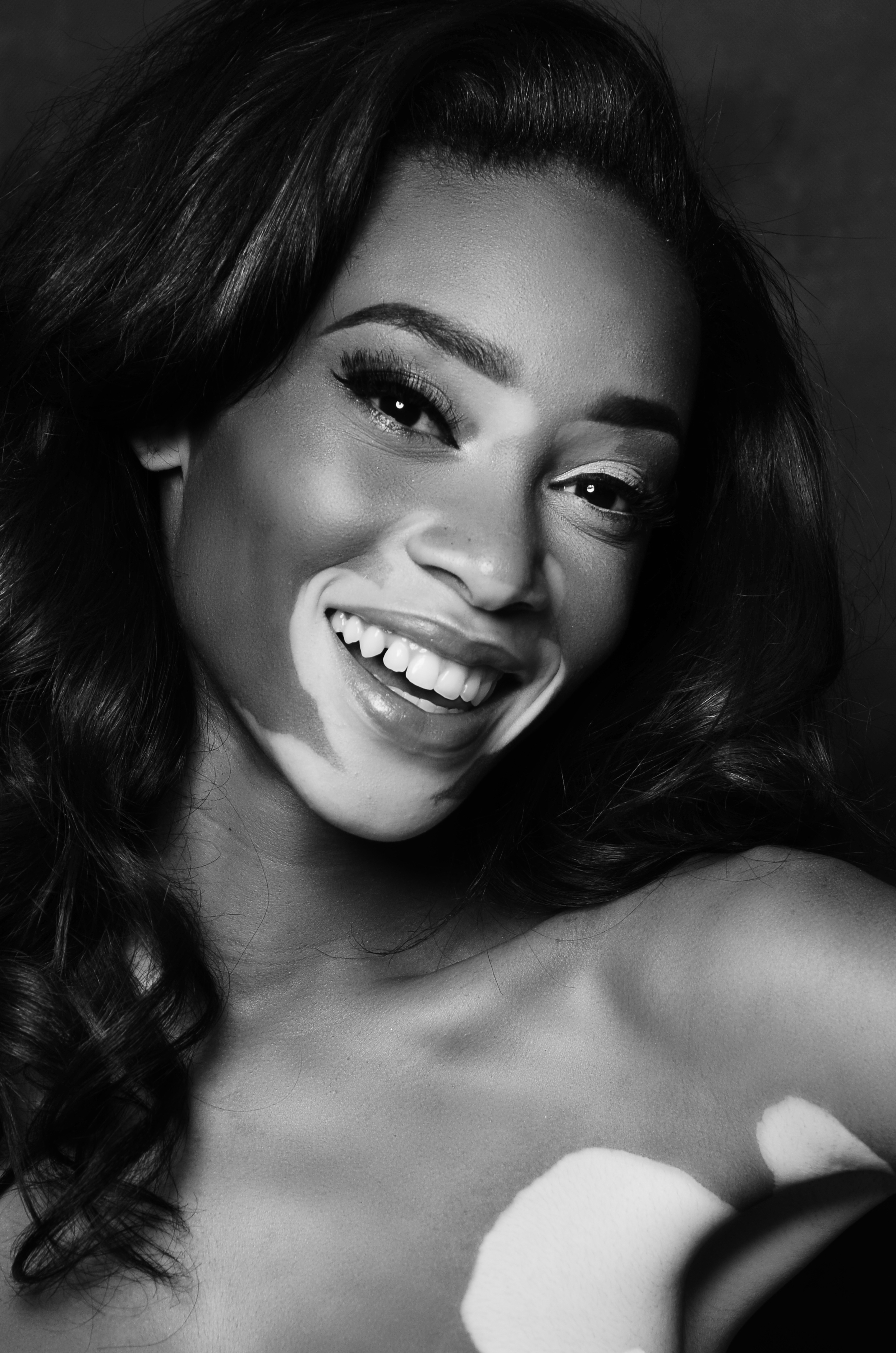 Winnie Harlow S Changing The Face Of Fashion Cnn Style