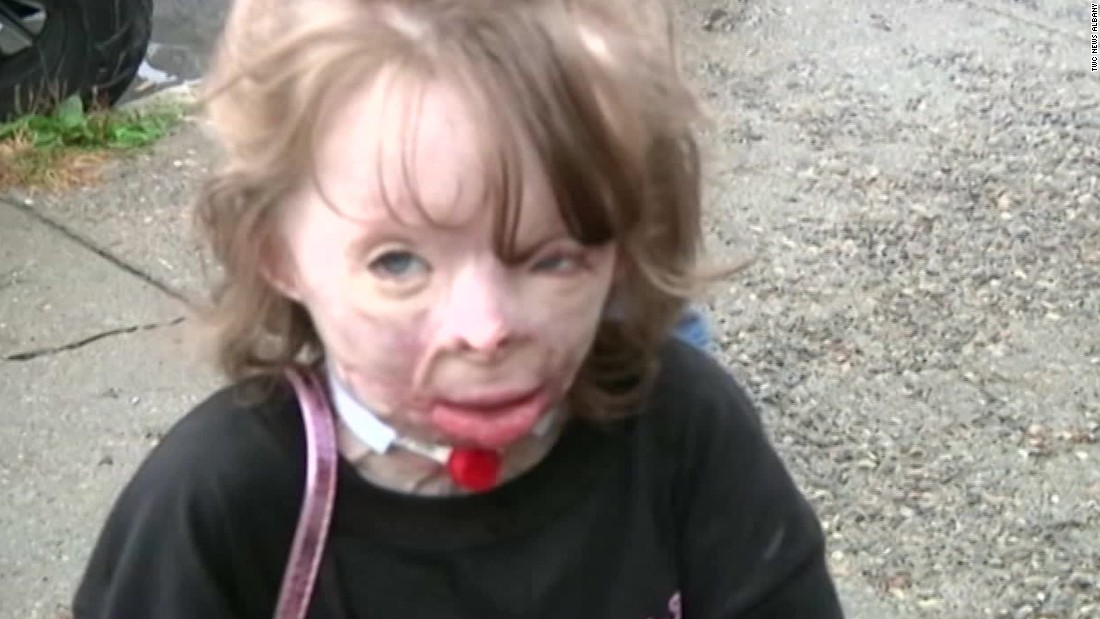 Burned girl who lost family in arson gets Disney trip
