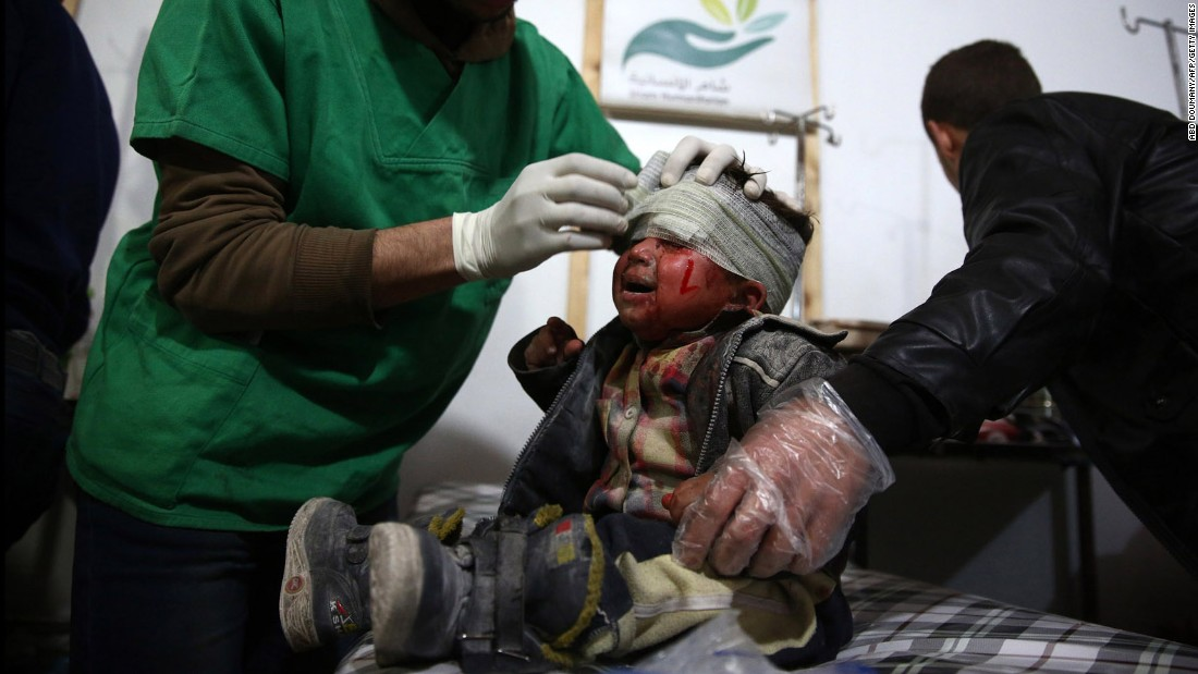 A child receives medical treatment after a reported airstrike in Douma, Syria, on Wednesday, December 30.