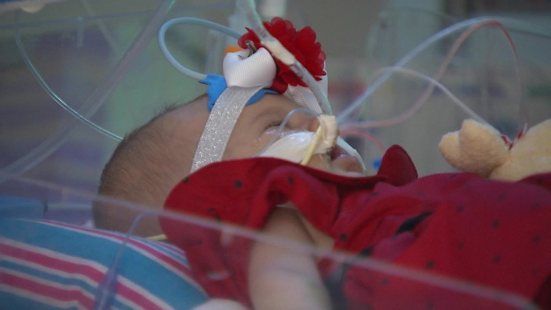 Teegan recovering at Nicklaus Children's Hospital in Miami.