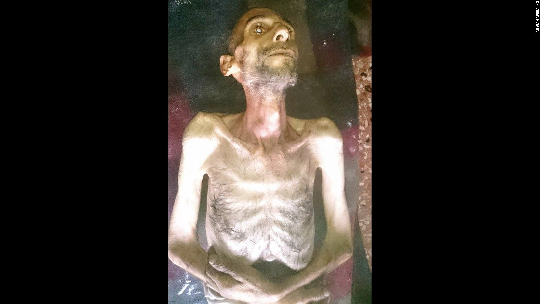 One activist in the Syrian town of Madaya posted this image on social media of Suleiman Abdul-Karim Fares, 40, who had died from starvation on January 4, 2016. CNN cannot independently verify the image or information.